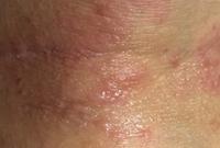まつげとアトピー性皮膚炎